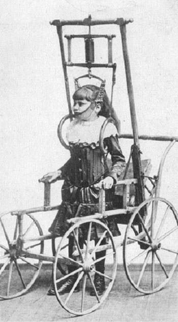 03 - Aparelho para coluna vertebral do Dr. Clark. 1878