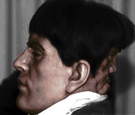 09 - Edward Mordrake – o homem com uma face demoníaca (como o próprio Edward dizia) atrás da cabeça que, bizarramente, não podia comer ou falar, mas podia sorrir e chorar. Edward se matou aos 23 anos, pois nenhum cirurgião era capaz de remover o rosto extra.